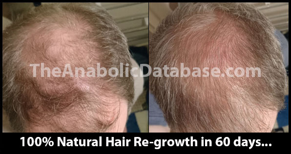 hair-loss-home-treatment-image